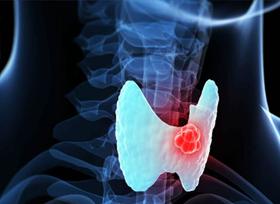 tiroideo